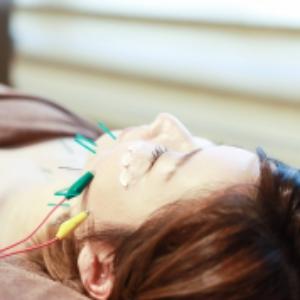 電気を流す美容鍼トライアル