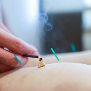 鍼を刺さずに、身体の表面にある反応点やツボを刺激することにより、身体の不調を取り除いていきます。